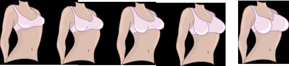 Mejorador de mama Perfect C